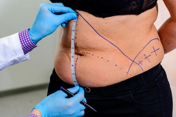 Consult The Best Cosmetic Surgeon for Liposuction in Maryland